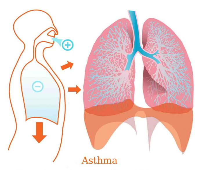 Asthma ,asthma triggers, diagnosis with asthma,best asthma remedies